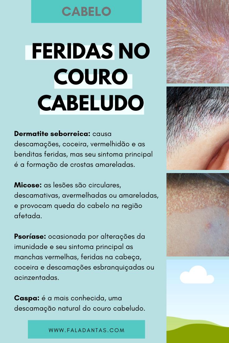 COMO EVITAR FERIDAS NO COURO CABELUDO
